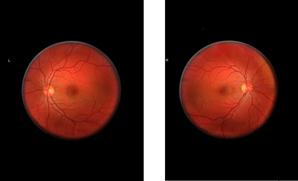 Mikhael Subotzky: Retinal Shift Standard Bank Gallery 17 April – 15 June 2013
